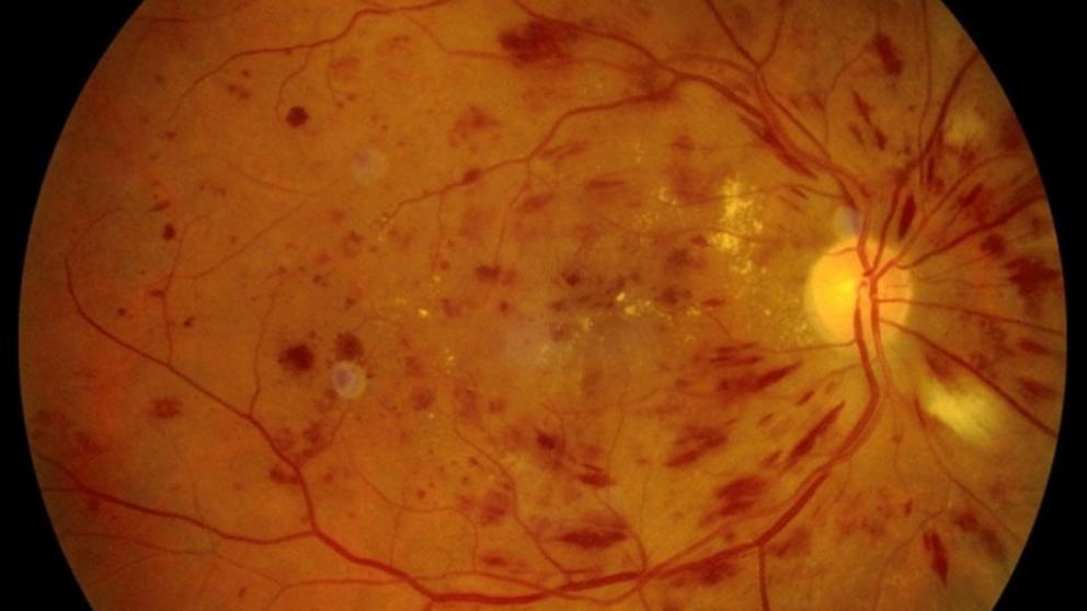 El sistema automatizado de detección de IA detecta con precisión la retinopatía diabética el 95,5% del tiempo