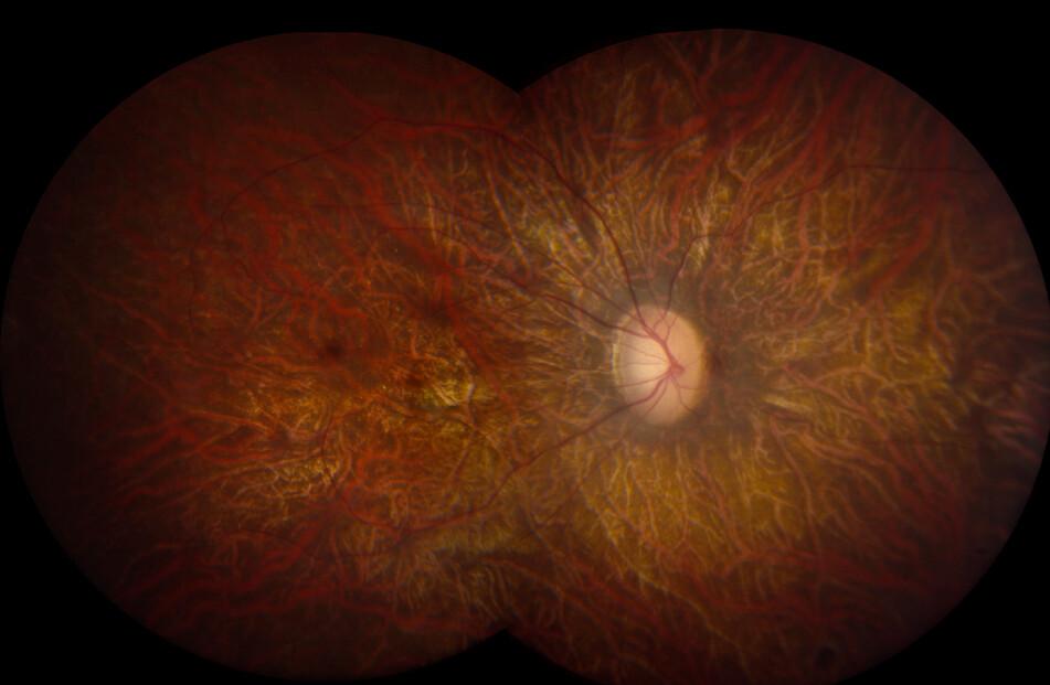 Las imágenes de la retina muestran una promesa en la detección temprana de la enfermedad de Alzheimer